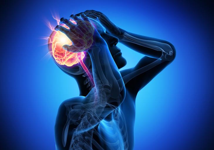 maux de tete-comment soigner facilement les migraines